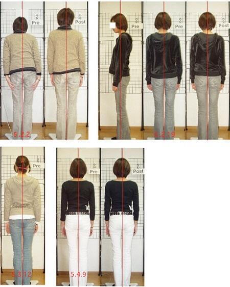 腰椎椎間板ヘルニア女性20代の姿勢変化