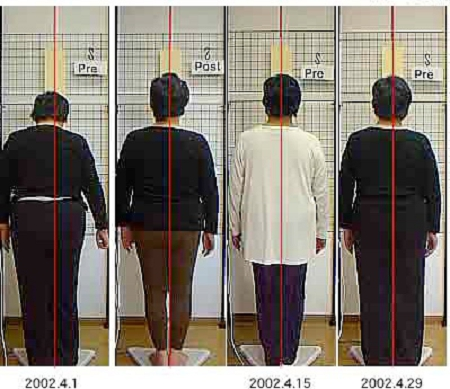左肩痛、腰部、右膝部痛(64歳 女性)-姿勢変化